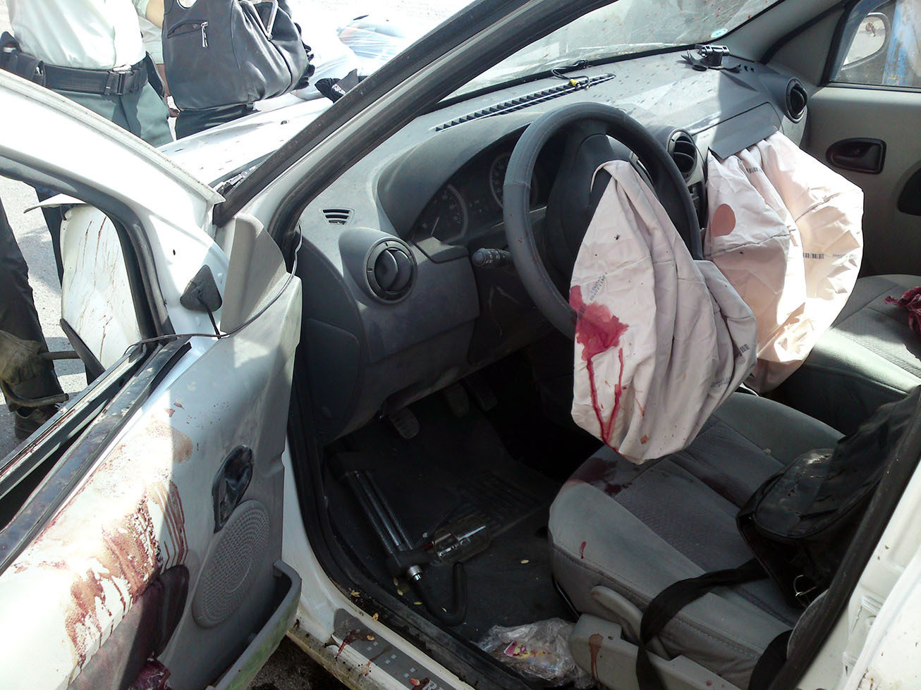 Click image for larger version  Name:airbag-bloody.JPG Views:33 Size:237.8 KB ID:202978
